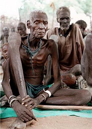 Негры, умирающие от ужасных заразных болезней в Африке